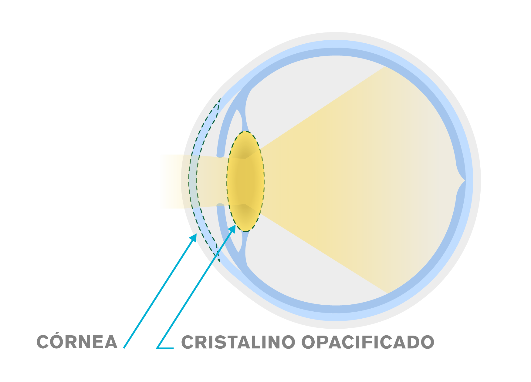 Diagrama de um cristalino normal versus um cristalino opaco de uma catarata ocular