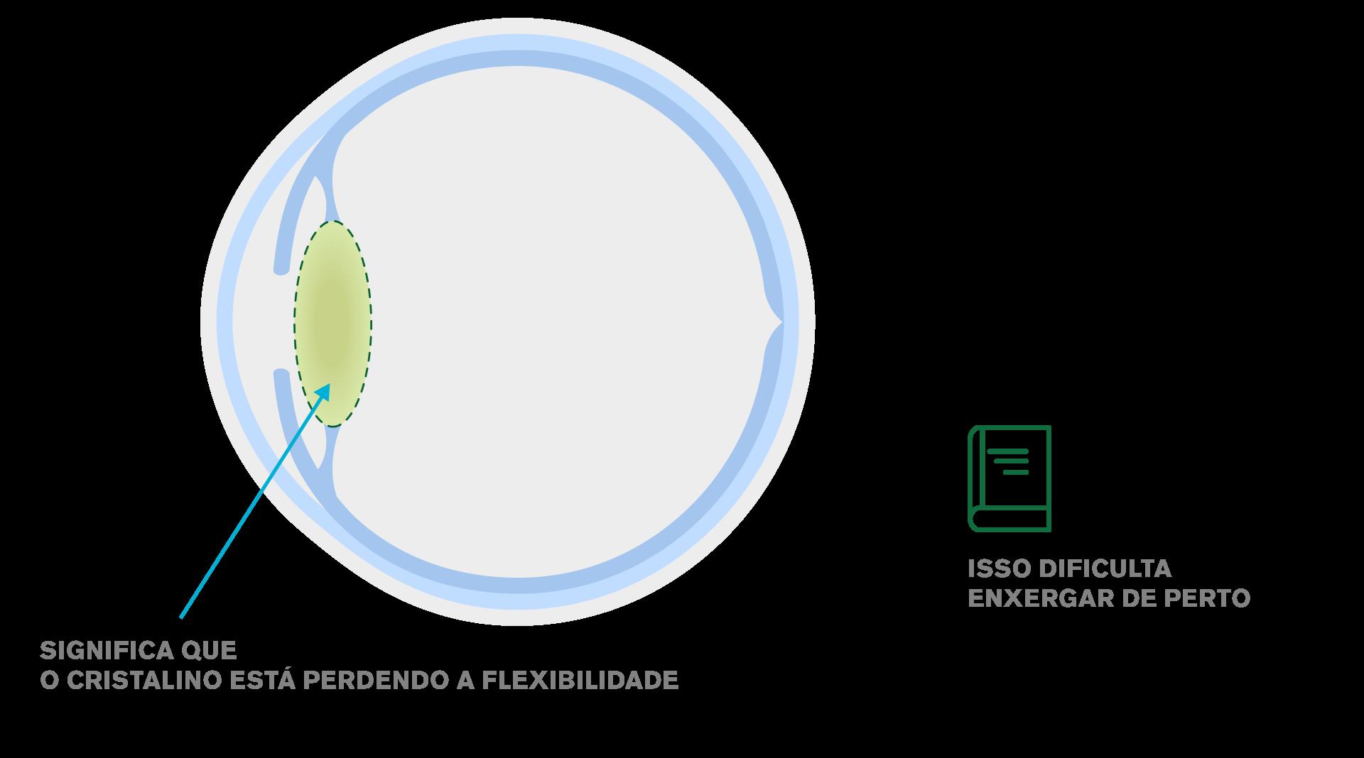 Imagem de um cristalino com presbiopia