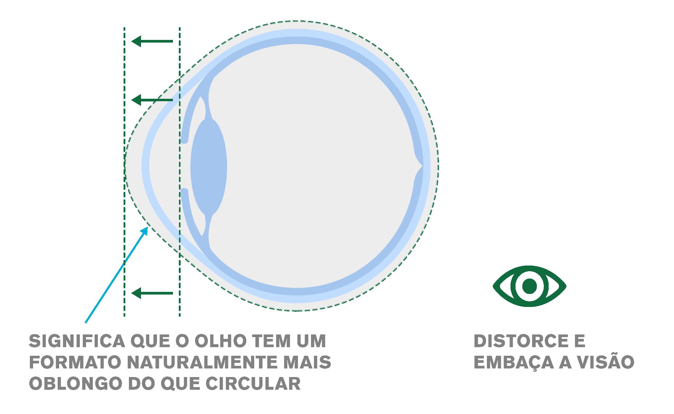 Imagem mostrando o formato de um olho com astigmatismo