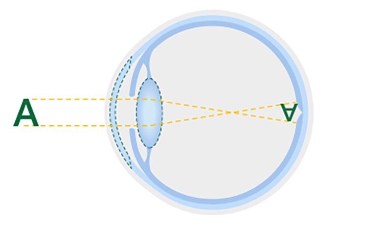 Diagrama de um cristalino saudável