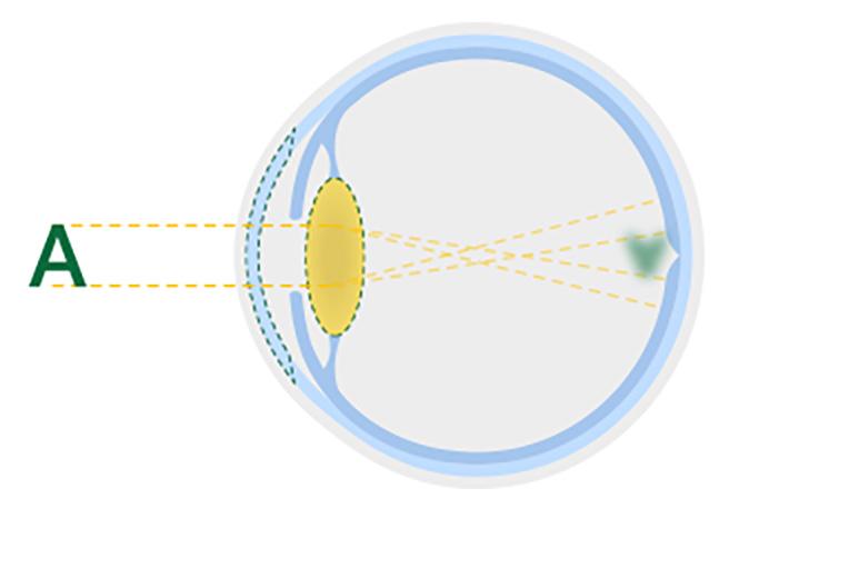 Diagrama de um cristalino opaco de uma catarata ocular